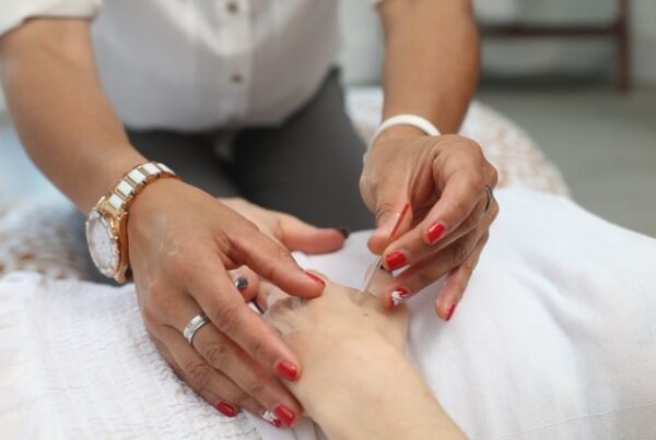 person administering acupuncture needle into patient's hand